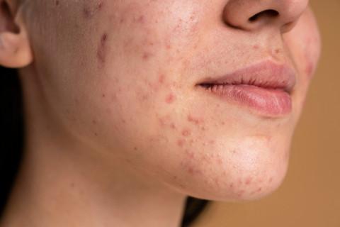 Celiachia la svolta nella cura della dermatite